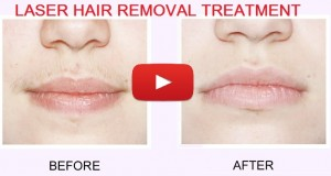 Laser Hair Removal Face Treatment Video Demonstration