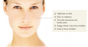 Great Face Lesson, Dry Skin Prevention