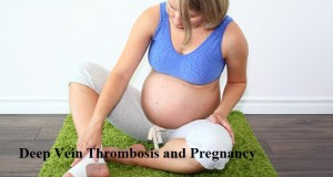 deep vein thrombosis prevention