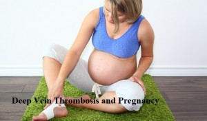 Deep Vein Thrombosis and Pregnancy Risks